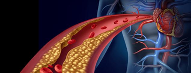 Das Metabolische Syndrom: Was Erkrankte für sich tun sollten