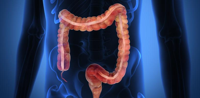 Parasiten im Darm? Jetzt sicher gehen